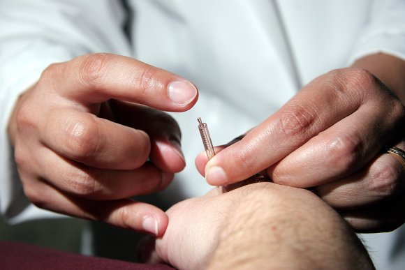 Doctor checking acupuncture